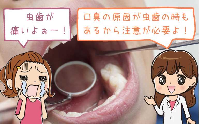 【対策まとめ】その口臭は虫歯が原因?虫歯以外が原因?